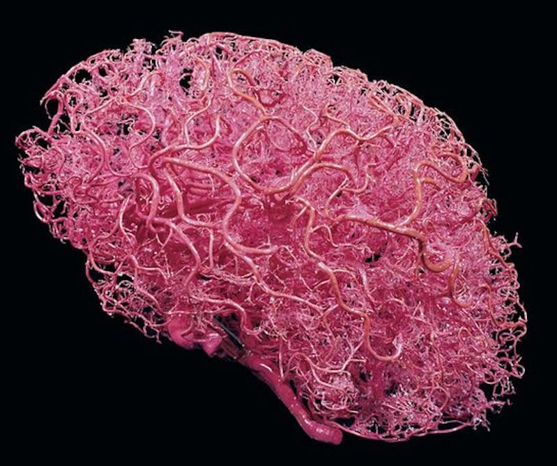 Image Of A Resin Cast Of The Brain's Arteries