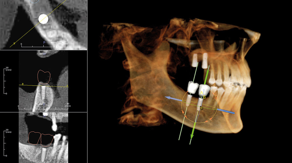 Cone Beam CT 3D can showing implant placement at Rock House Dental Practice, Wells, Somerset