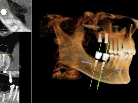 Dentistry in the 21st Century - Our 3D Scanner Makes Treatment Easier And More Effective