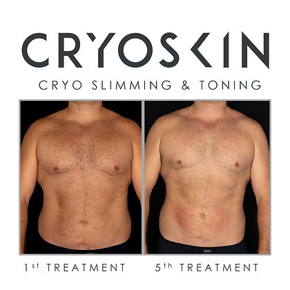 3 CRYOSKIN SESSIONS