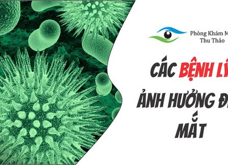 Những Bệnh Lý Có Thể Ảnh Hưởng Đến Mắt | Phòng Khám Mắt Thu Thảo