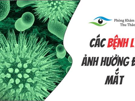 Những Bệnh Lý Có Thể Ảnh Hưởng Đến Mắt   Phòng Khám Mắt Thu Thảo
