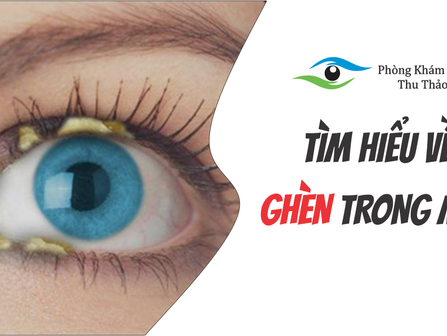 """TÌM HIỂU VỀ """"GHÈN"""" Ở TRONG MẮT   Phòng Khám Mắt Thu Thảo"""