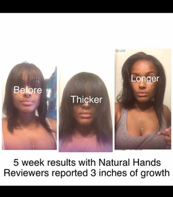 Hair Growth and Thickness