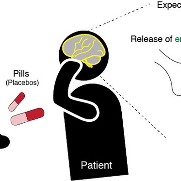 #49 When it comes to placebos, urgency necessitates reality