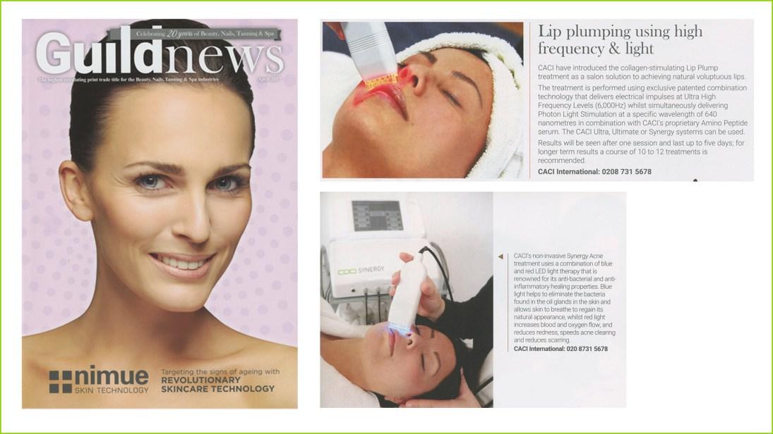 guild-lips-acne-apr17
