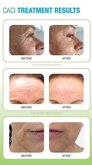 CACI treatment results
