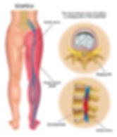 Sciatica back pain