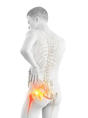 Hip Pain and osteoarthritis
