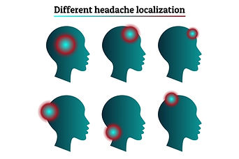Headaches at the front, top, sides or back of the head or neck
