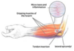 Tennis or Golfers Elbow Pain.png