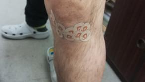セルフケア 膝の痛み