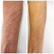 scars-microneedling 3.jpg