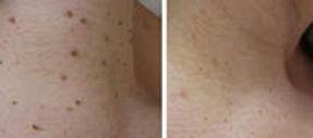 Skin Tag 1.jpg