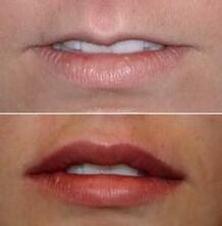 Lip Fillier Image 1.png