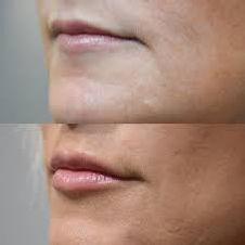 Lip Fillier Image 2.jpg