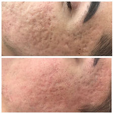 scaring-microneedling-before-and-after 2