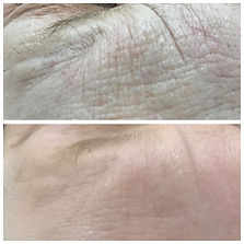 microneedling-face-before-and-after.jpg