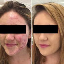 Skin Peels 1.jpg