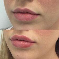 Lip Fillier Image 3.jpg