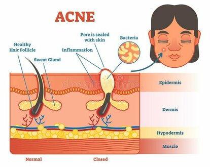 Acne Animated illisturation.jpg