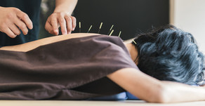 Acupuncture: Is it for you?