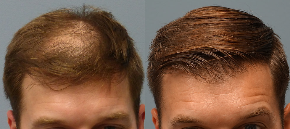 Before-and-After-Neograft-Hair-Transplan