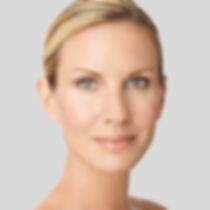 model-botox.jpg