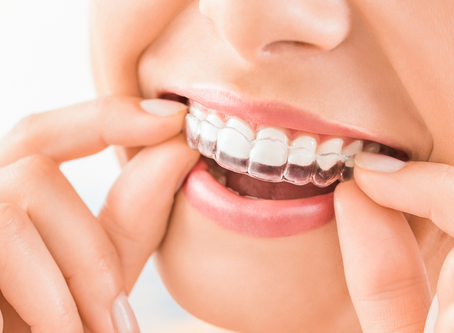 Treatment of invisible aligners? Advantages and Disadvantages