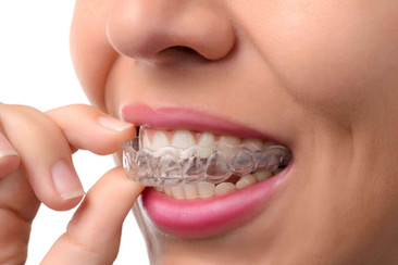 Woman-wearing-orthodontic-silicone-train
