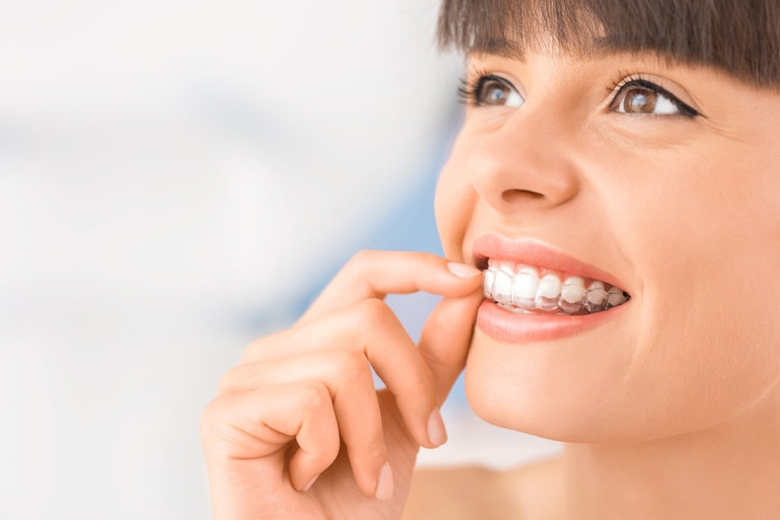 smile-aligners-transparent-braces.jpg