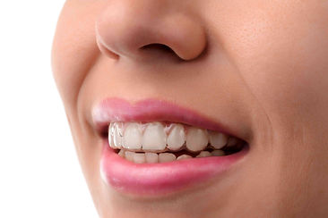 Dental-medical-care.-Invisible-braces.-S