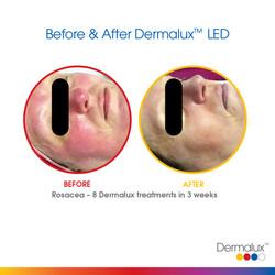 Dermalux SM Before After 001
