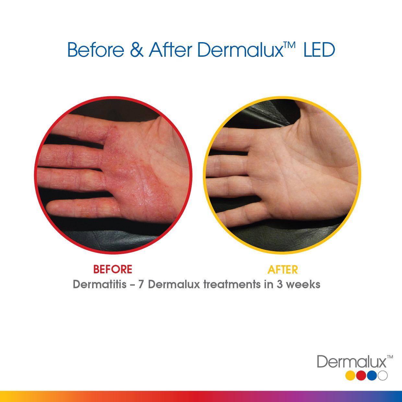 Dermalux SM Before After 002