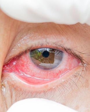 remedios-caseros-para-la-rosacea-ocular-