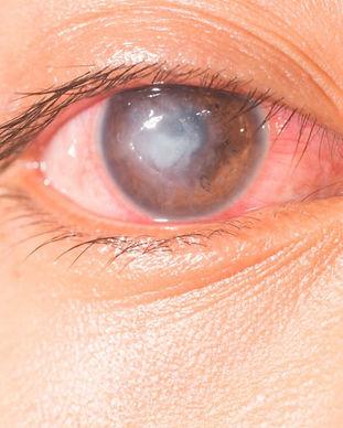 úlcera-corneal-1280x720.jpg
