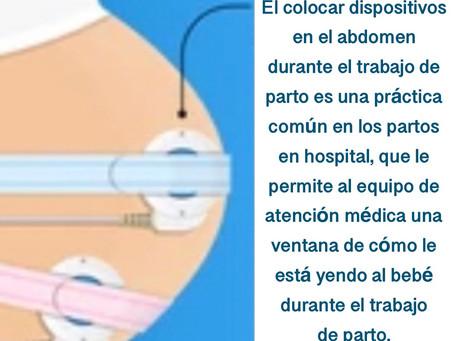 La monitorización fetal externa