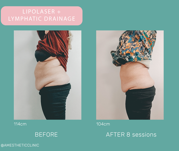 BEFORE-AFTER - lipo+lim.png