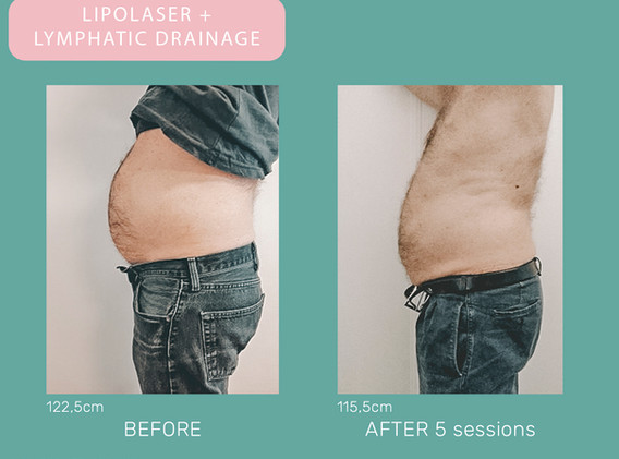 BEFORE-AFTER - lipo.jpg