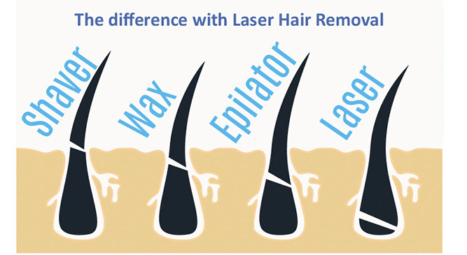 The Science Behind Diode Laser Hair Removal