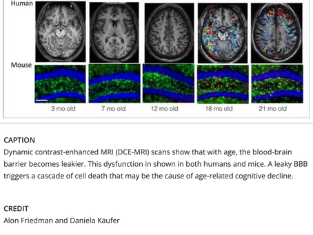 New Findings in Alzheimer's & Other Dementias-Rejuvenation with Anti-TGF-beta?