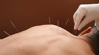 bigstock-Close-up-Needle-In-The-Back-Of-