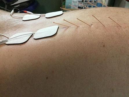 dry needle 4.jfif