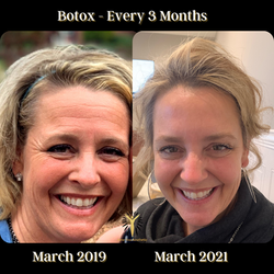 Botox - Every 3 Months