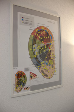 Ohr-Akupunktur Plakat