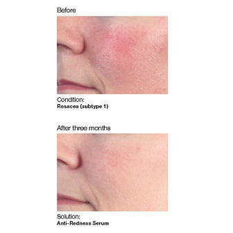 Skin treatment for rosacea showing before and after using hydrating skin serum and anti redness skin solution