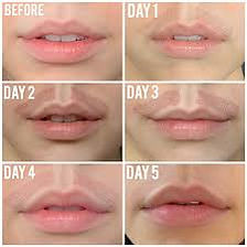 Plasma fibroblasting around lips on model before and after