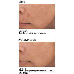 Tacoma services showing before and after of skin hyperpigmentation and skin discoloration resulting into glowing skin brighter skin