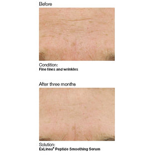 Tacoma skincare services showing before and after with less wrinkes and less skin fine lines make skin younger looking