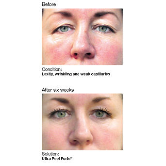 Tacoma skin cae services showing before and after showing aging skin into younger looking skin, reduced facial wrinkling from skin chemical peel